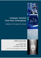 Computer Assisted Orthopaedics – The Image Free Concept in Total Knee Arthroplas